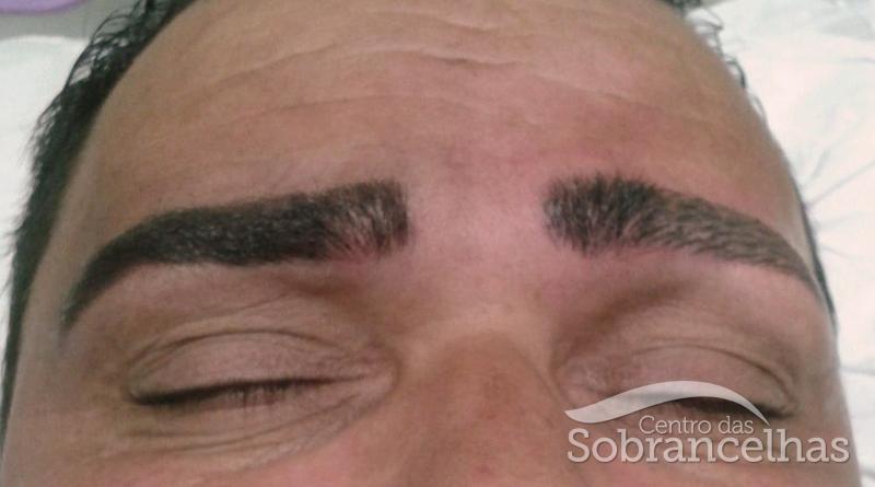 Micropigmentação masculina_Retoque