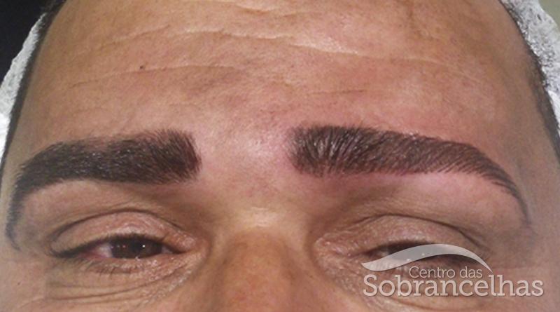 Micropigmentação masculina_depois