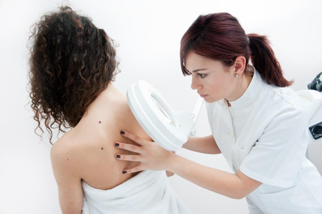 câncer de pele checkup