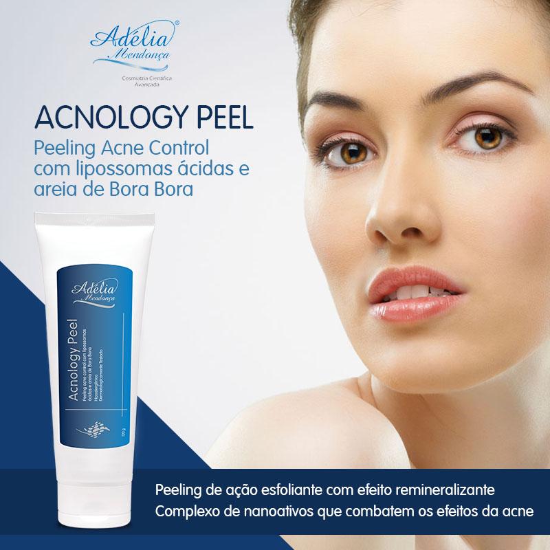 banner-acnology-peel
