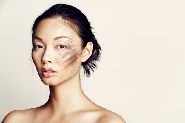 efeitos poluição pele