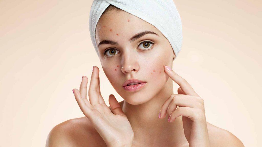acne-cover